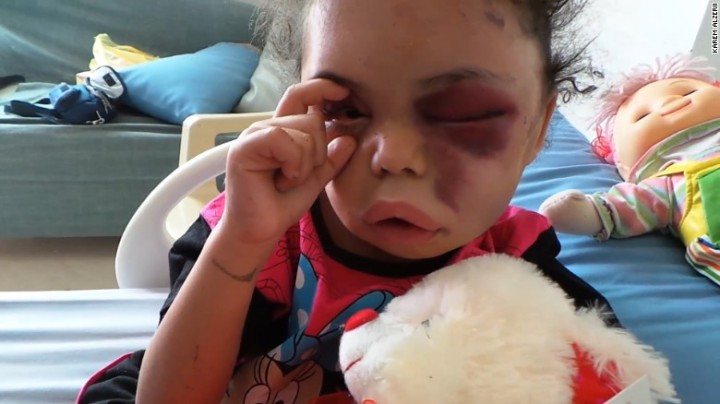 Yemeni Child's Story Is Symptom Of Saudi Arabian Brutality, And She